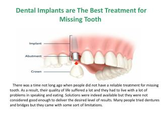 Dental implants are the best treatment for missing tooth