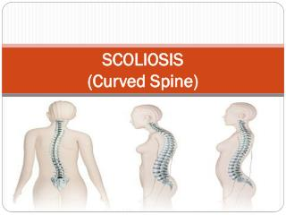Scoliosis (Curved Spine)