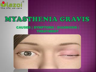 Myasthenia Gravis: Symptoms, Causes, diagnosis and treatment.