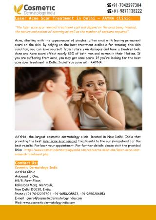 Laser Acne Scar Treatment in Delhi – AAYNA Clinic
