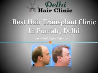Get natural hair with hair transplant clinic in Punjab,Delhi