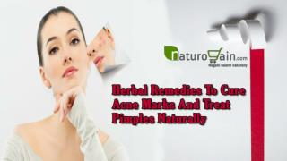 Herbal Remedies To Cure Acne Marks And Treat Pimples Naturally