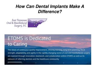 How Can Dental Implants Make A Difference?