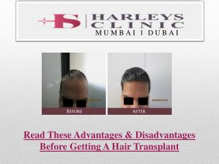 Read These Advantages & Disadvantages Before Getting A Hair Transplant