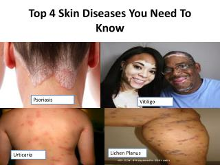 Top 4 Skin Diseases You Need To Know