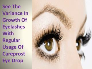 See The Variance In Growth Of Eyelashes With Regular Usage Of Careprost Eye Drop