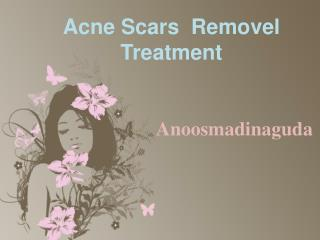 ACNE SCARS REMOVAL TREATMENT IN HYDERABAD, SCAR REMOVAL TREATMENT IN HYDERABAD – Anoosmadinaguda