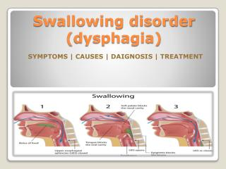 Swallowing disorder (dysphagia) in children- Causes, Symptoms, Diagnosis and Treatment