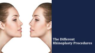 The Different Rhinoplasty Procedures