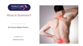 Scoliosis of the Spine: Causes, Types & Treatments