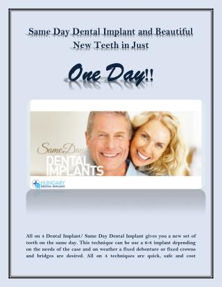 Same Day Dental Implant and Beautiful New Teeth in Just  One Day!!