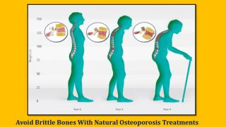 Osteoporosis Treatment Approaches Once you know you have osteoporosis, you have many options for treating the condition