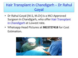 Hair Transplant in Chandigarh by Dr Rahul Goyal