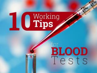 10 Working Tips for Blood Tests