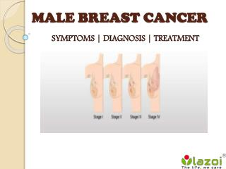 Male Breast Cancer : Symptoms, diagnosis and treatment