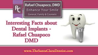 Interesting Facts about Dental Implants - Rafael Chuapoco DMD