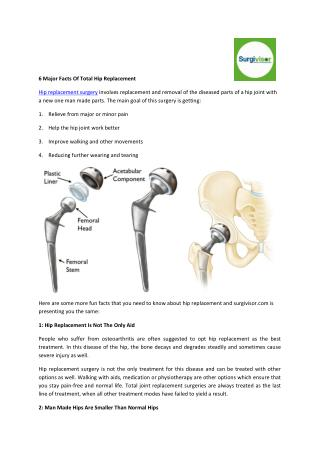 6 Major Facts Of Total Hip Replacement