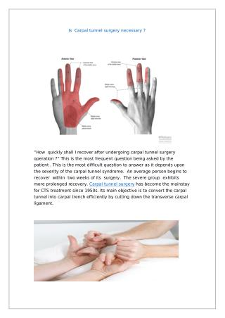 Looking for Carpal tunnel treatment