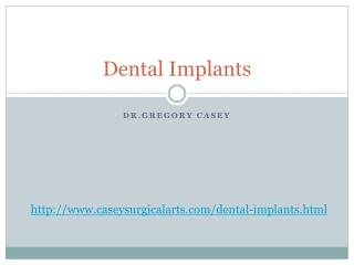 Dental Implants by Dr. Gregory Casey
