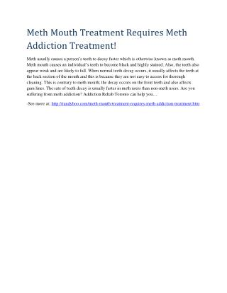 Meth Mouth Treatment Requires Meth Addiction Treatment!