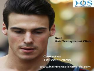 Best Hair Transplant Clinic in Noida Dial 9911170709