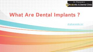 What Are Dental Implants ?