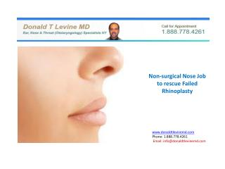 Non-Surgical Nose Job to rescue failed Rhinoplasty