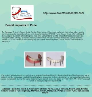 Best Dentist in Pimpri Chinchwad