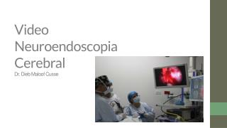 Video Neuroendoscopia Cerebral - Dieb Maloof