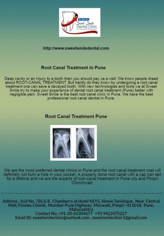 Root Canal Treatment in Pune-Sweet Smile Dental