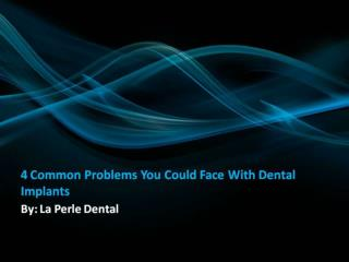 4 Common Problems You Could Face With Dental Implants