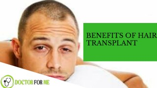 Benefits of Hair Transplant