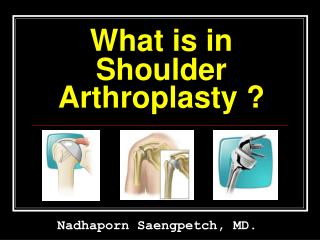 What is in  Shoulder Arthroplasty ?