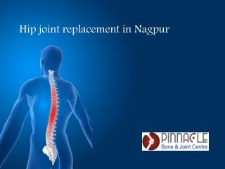 Hip Joint Replacement in Nagpur