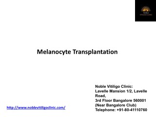 Melanocyte transplant for vitiligo