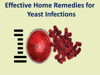 Effective home remedies for yeast infections