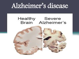 Alzheimer's disease : Overview, Symptoms, Risk Factor, Causes, Treatment and diagnosis