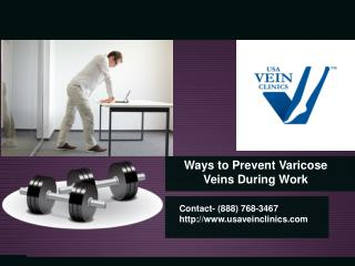 Ways to Prevent Varicose Veins During Work