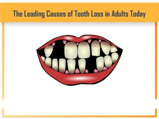 The Leading Causes of Tooth Loss in Adults Today