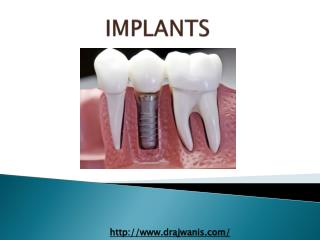 Overview of Dental Implant By Pune's Cosmetic Dentist - Dr. Ajwani