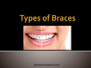 Types of braces By Dr. Ajwani's Family & Cosmetic Dental Care Centre