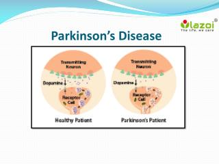 Parkinson's Disease : overview, symptoms, causes, treatment and diagnosis