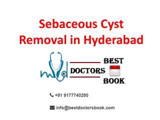 Sebaceous Cyst Treatment in Hyderabad | Sebaceous Cyst Cost