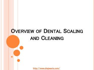 Overview of Dental Scaling and Cleaning By Dr. Ajwani's Family & Cosmetic Dental Centre