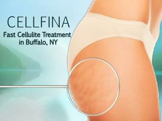 Cellfina - Fast Cellulite Treatment in Buffalo, NY