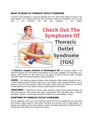 Check Out The Symptoms Of Thoracic Outlet Syndrome (TOS)