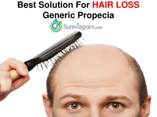 Best Solution For Hair Loss - Generic Propecia