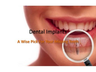Dental Implants - A Wise Pick For Your Missing Teeth