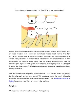 Do you have an Impacted Wisdom Tooth? What are your Options?