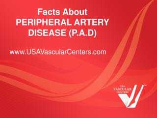 Facts About Peripheral Artery Disease (P.A.D)